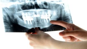 歯のレントゲンの写真