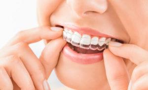 できるだけ歯を抜かない矯正治療